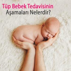 Tüp Bebek Tedavisi - Tüp Bebek merkezi - tüp bebek aşamaları - kıbrıs tüp bebek - gyno life - kıbrıs tüp bebek merkezleri - yumurta donasyonu - sperm donasyonu - embriyo donasyonu - cinsiyet seçimi